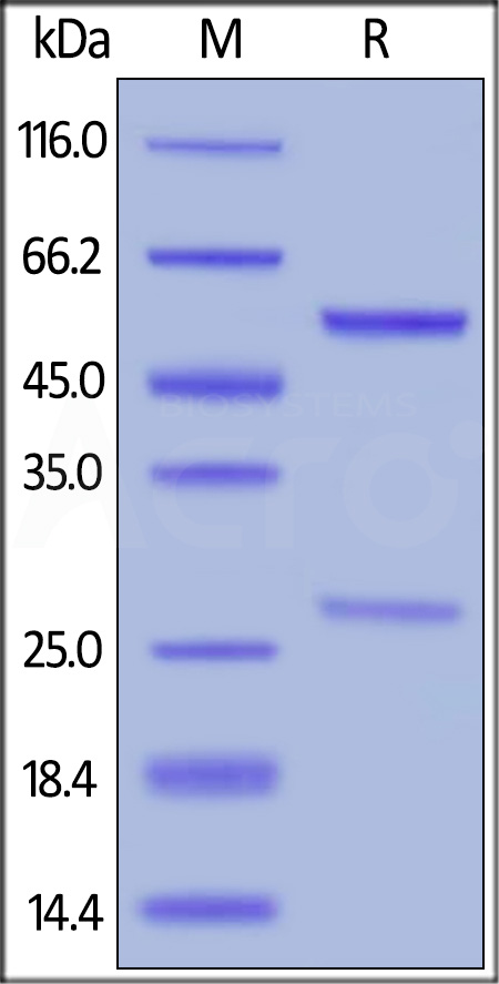 Anti-Cetuximab Antibodies (Non-Neutralizing) (Cat. No. CEB-Y31) SDS-PAGE gel