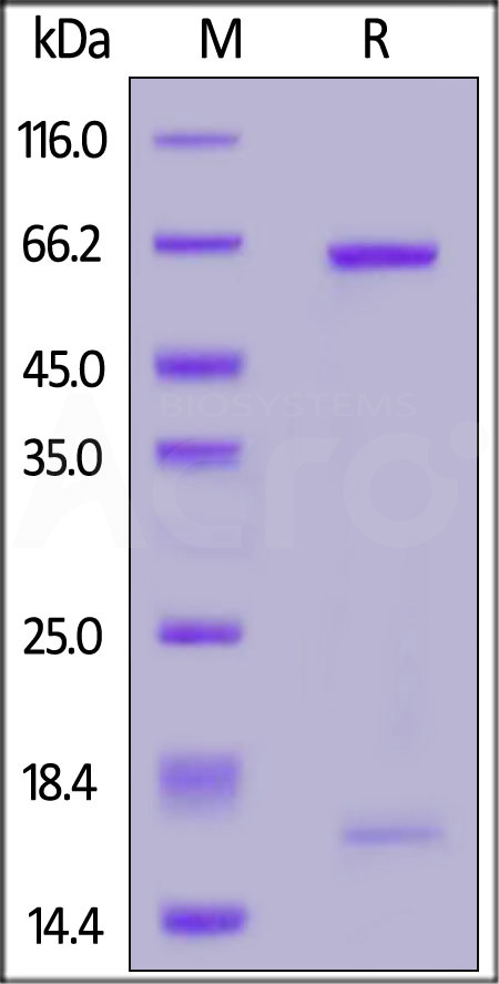 Biotinylated Human PCSK9 (D374Y), Avitag,His Tag (Cat. No. PCY-H82E7) SDS-PAGE gel